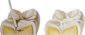 La sigillatura dei solchi dei primi molari permanenti