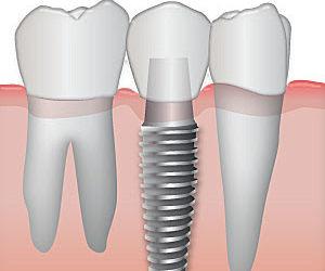 Ricostruzione del dente singolo