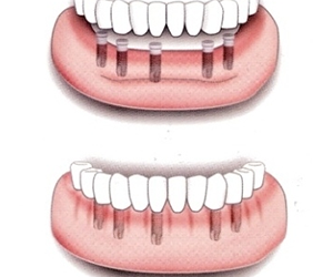 Ricostruzione di più elementi dentali